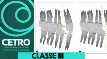 CLASSE3